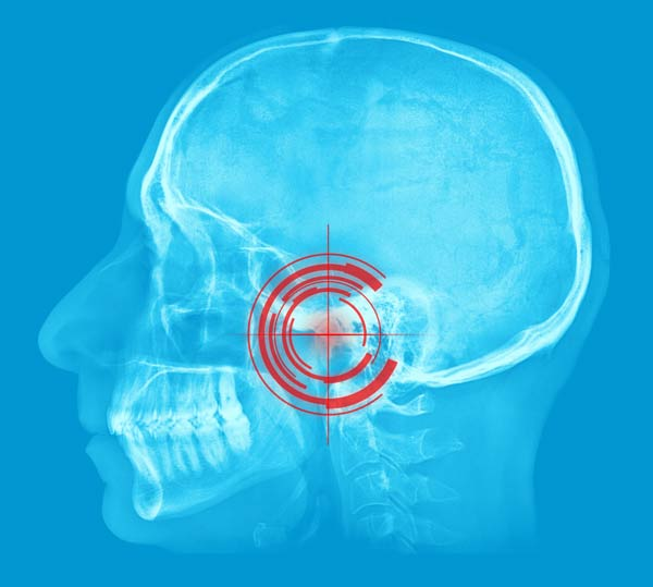 The source of headaches may be TMJ